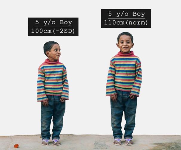 'Niño de 5 años comparado con su yo potencial'